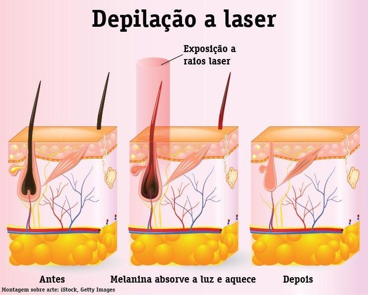 depilacao a laser intima